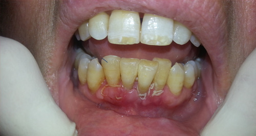 After-Periodoncia